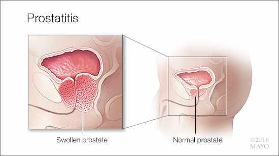 disfunción del suelo pélvico como causa de prostatitis